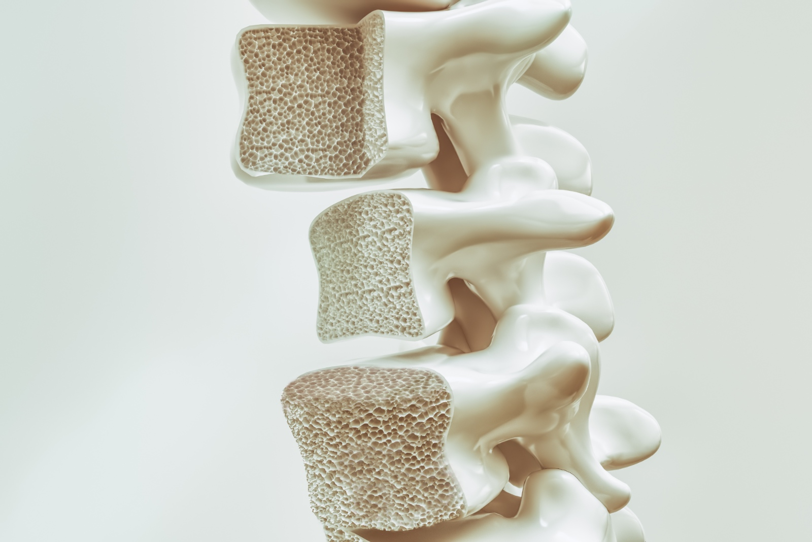 Biomimetic Porosity Can Be A Determinant Of Bone Graft Success.