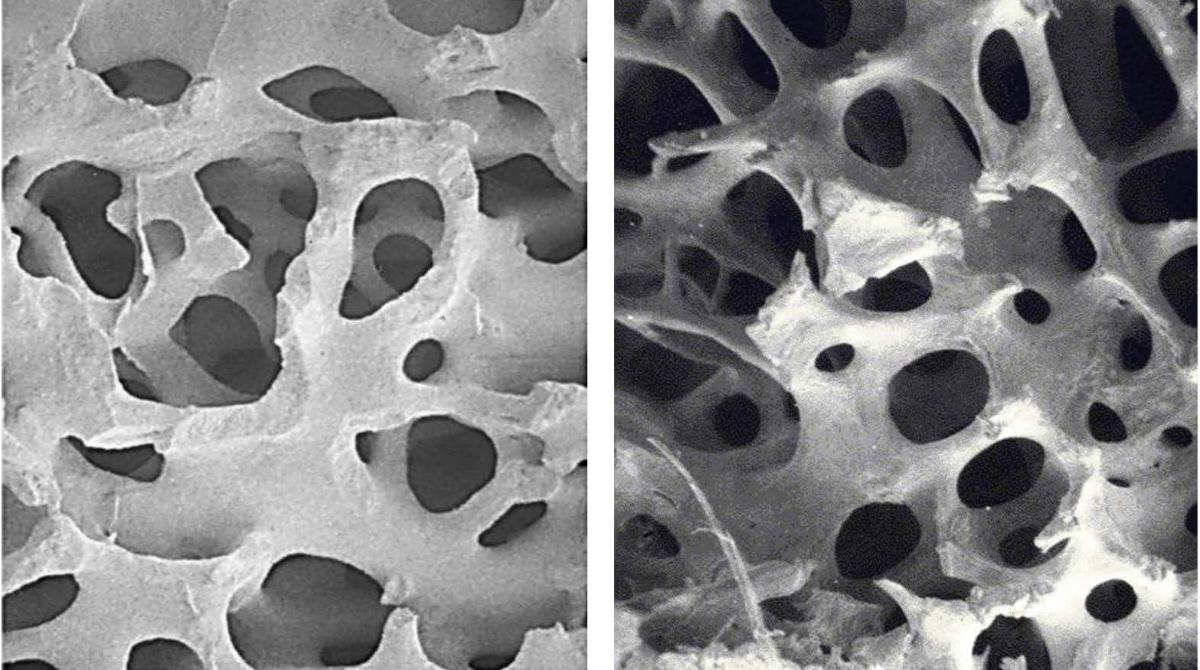 Closeup of TrelCor technology's biomimetic porosity that resembles human cancellous bone