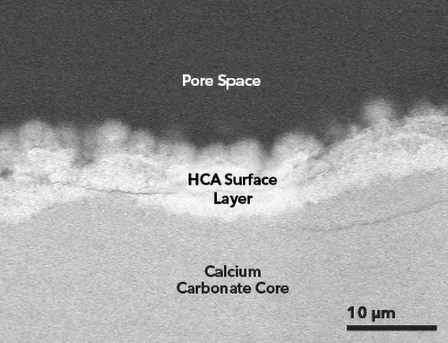 TrelCor bone graft cross section showing biphasic composition of calcium carbonate and HCA